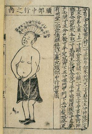 Medicina y acupuntura china