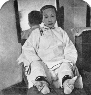 Vendaje de pies chino